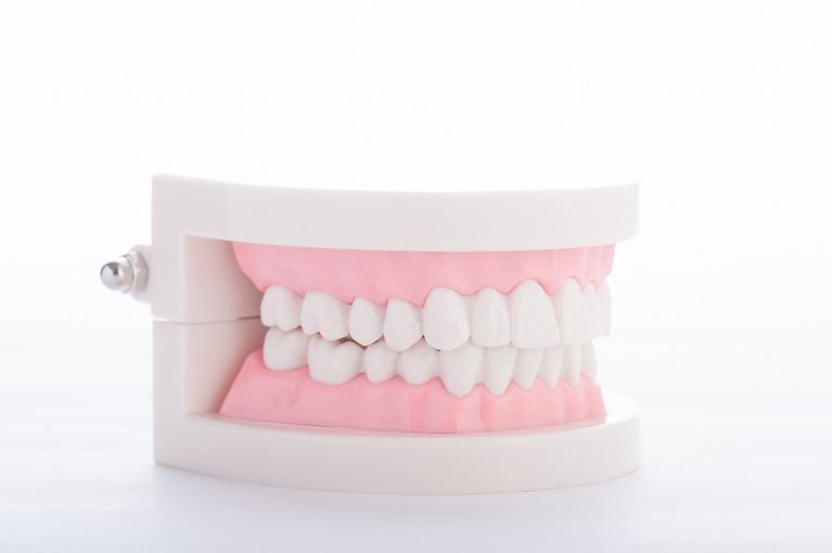 部分入れ歯と差し歯