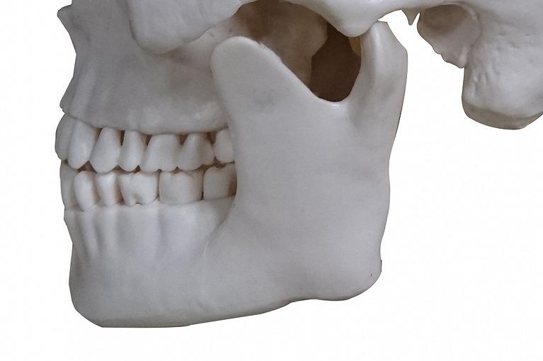 顎の骨の状態